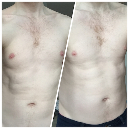 Before After Slendertone Abs